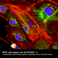 BPAE cells  imaged with the CELENA™ S