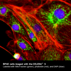 Fluorescence microscopy images of BPAE cells with the CELENA™ S
