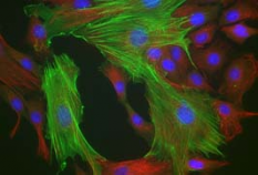 Rat osteoblasts immunostained for α actin (green) and vimentin(red).  Nucleii (blue) were stained with Hoechst.