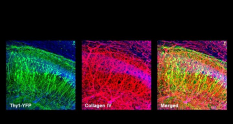 Thy1-YFP Transgenic mouse brain cleared with X-CLARITY™ ; neurons (green), ECM (red) and nuclei (blue) are labeled